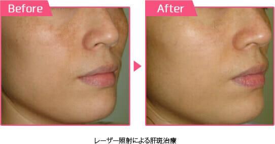 レーザー照射による肝斑李朝before/after